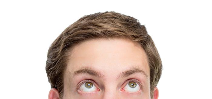 額の狭い人は薄毛になりにくい?