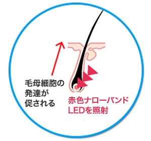 赤色ナローバンドLEDを照射 | 進化する育毛技術 ~もう諦めない抜け毛薄毛の悩み~