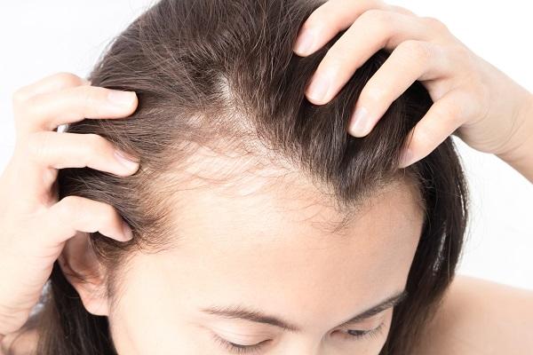 女性の抜け毛や薄毛 脱毛症になる原因とは 進化する育毛技術 4 6 カミわざ