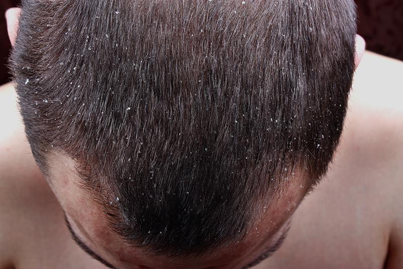 の 乾燥 頭皮 髪の自然乾燥はNG!?頭皮が乾燥する原因&ケア方法、おすすめアイテムをプロが徹底解説♪