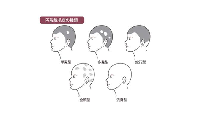 脱毛 原因 円形 症