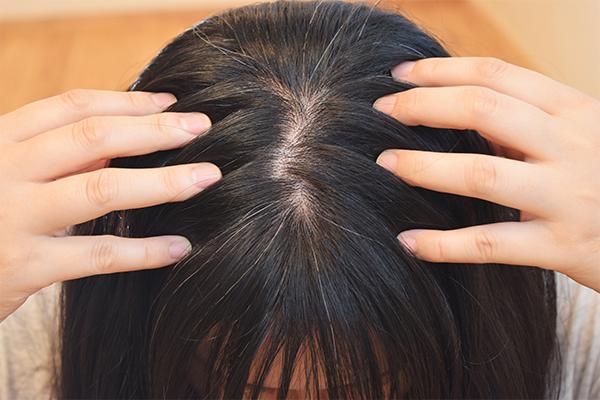 女性の薄毛が急増 代 30代からはじめる抜け毛対策 カミわざ