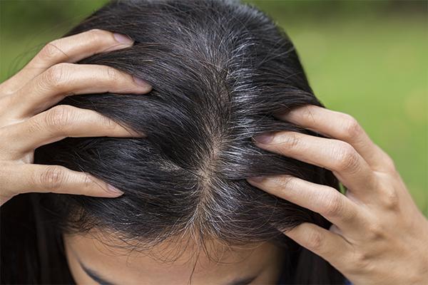 脱毛 治る 円形 前兆 症 円形脱毛症の回復の兆しを解説! 産毛が生えたら回復期の可能性あり